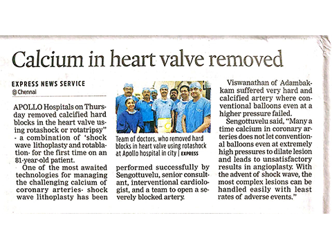 Calcium in heart valve removed