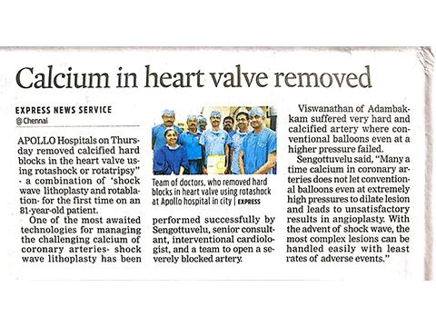 Calcium in heart valve removed